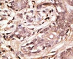 SUMO4 Antibody (PA5-11362) in Immunohistochemistry