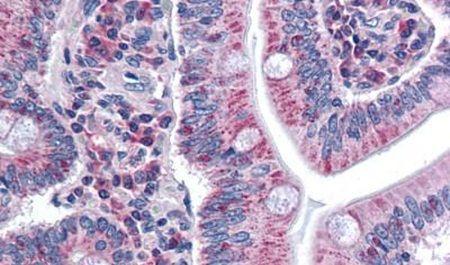 SURF4 Antibody (PA5-33063)
