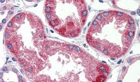 SURF4 Antibody (PA5-34228) in Immunohistochemistry (Paraffin)