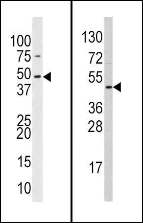 SUV39H2 Antibody (PA5-11366) in Western Blot