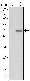 SUZ12 Antibody (MA5-15732) in Western Blot