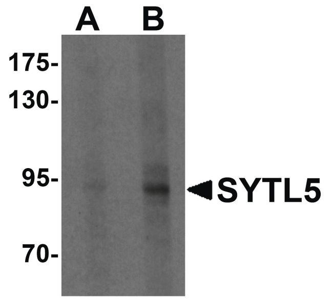 SYTL5 Antibody (PA5-21176) in Western Blot