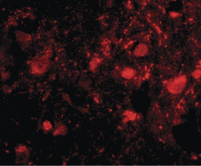 SLITRK3 Antibody (PA5-20473) in Immunofluorescence