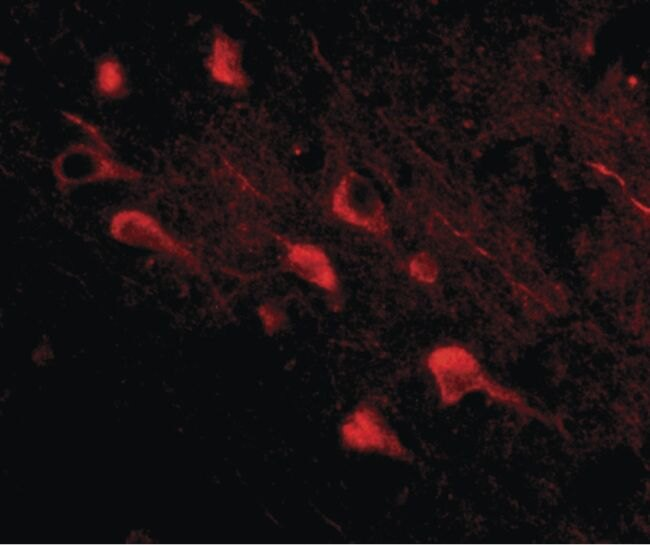 SLITRK5 Antibody (PA5-20478)