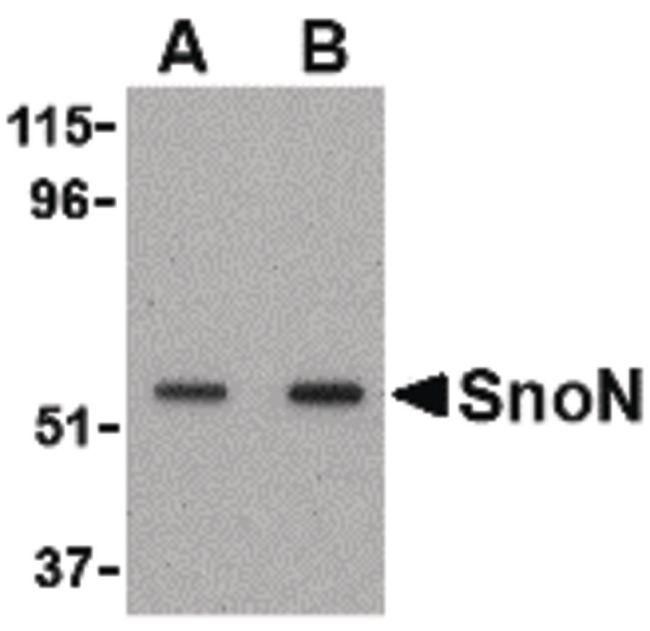 SKIL Antibody (PA5-20306) in Western Blot
