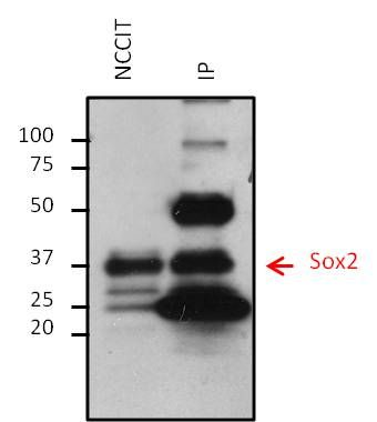 SOX2 Monoclonal Antibody (20G5)
