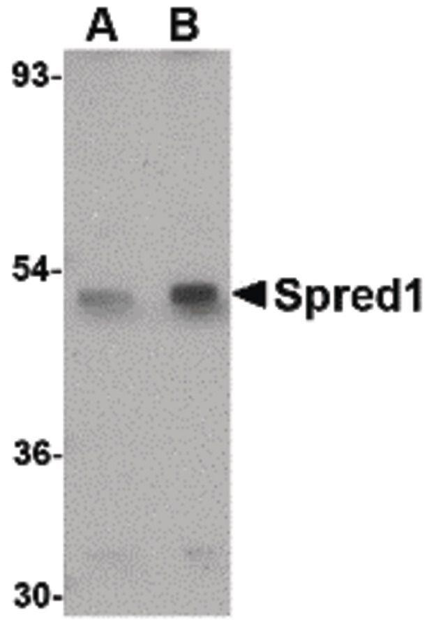 SPRED1 Antibody (PA5-20617) in Western Blot