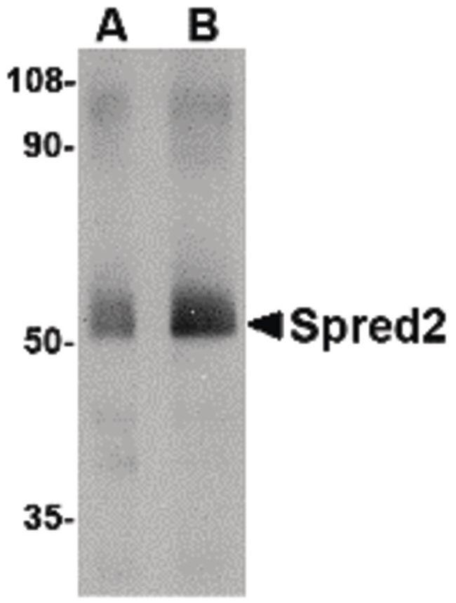 SPRED2 Antibody (PA5-20625)