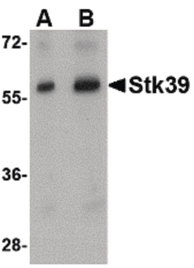 STK39 Antibody (PA5-20628) in Western Blot