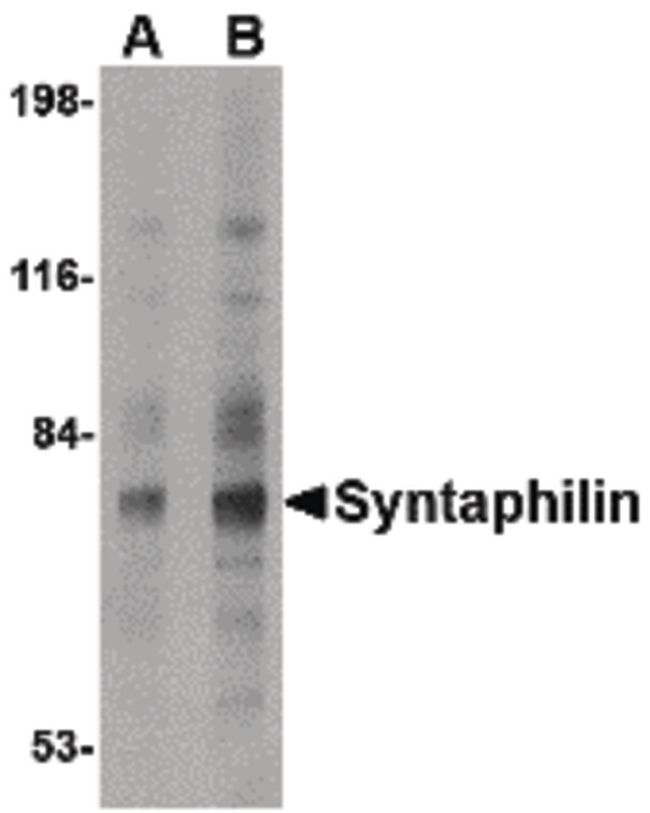 Syntaphilin Antibody (PA5-20528) in Western Blot