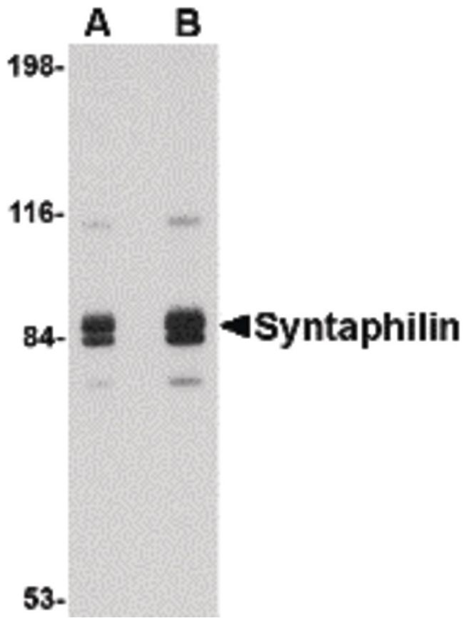 Syntaphilin Antibody (PA5-20529) in Western Blot
