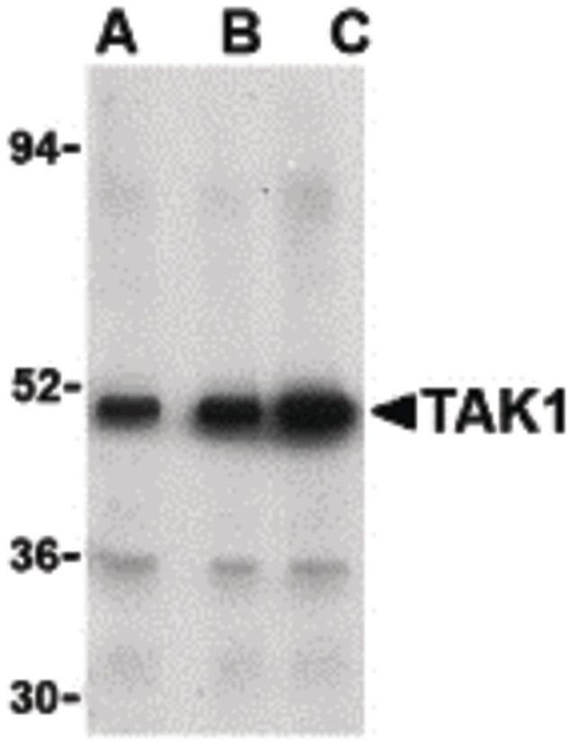 TAK1 Antibody (PA5-20083) in Western Blot