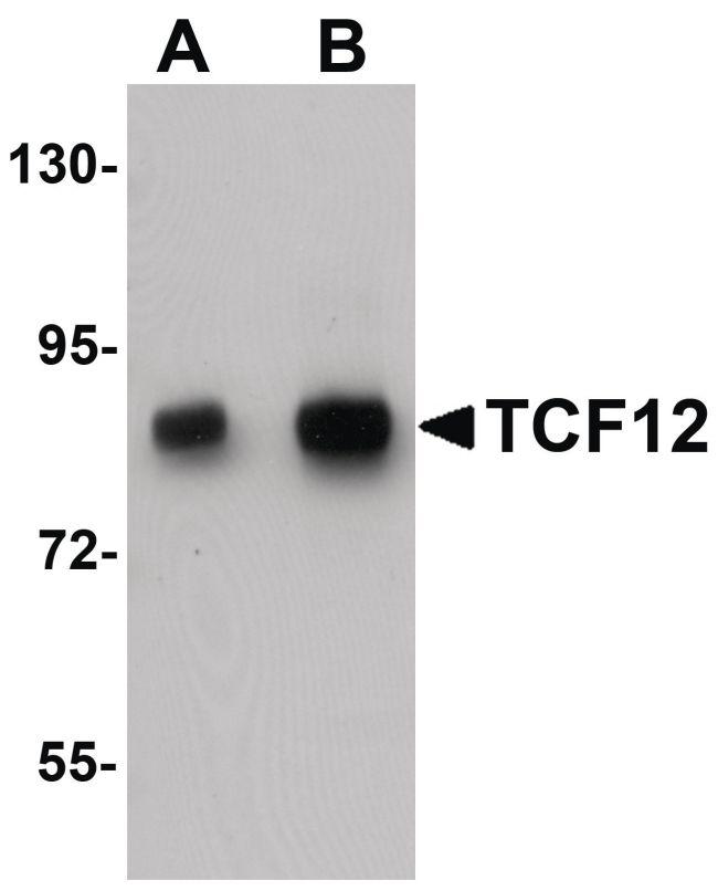 TCF12 Antibody (PA5-21039) in Western Blot