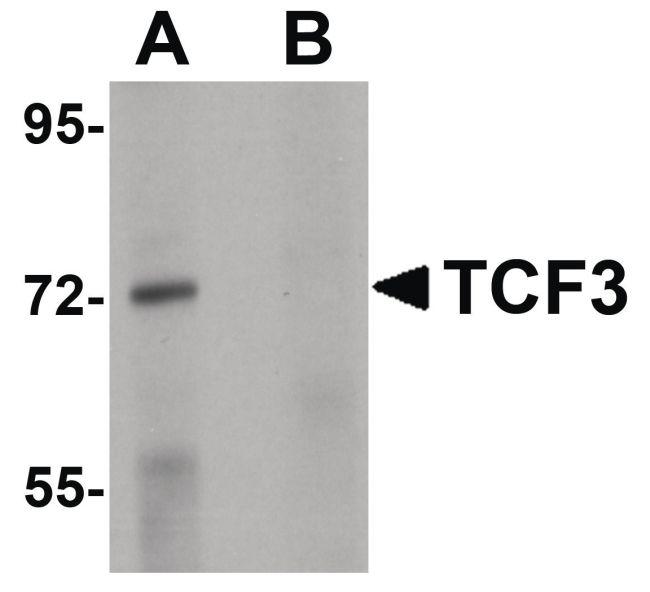TCF3 Antibody (PA5-20900) in Western Blot