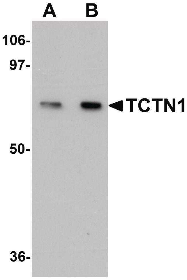 TCTN1 Antibody (PA5-20983) in Western Blot