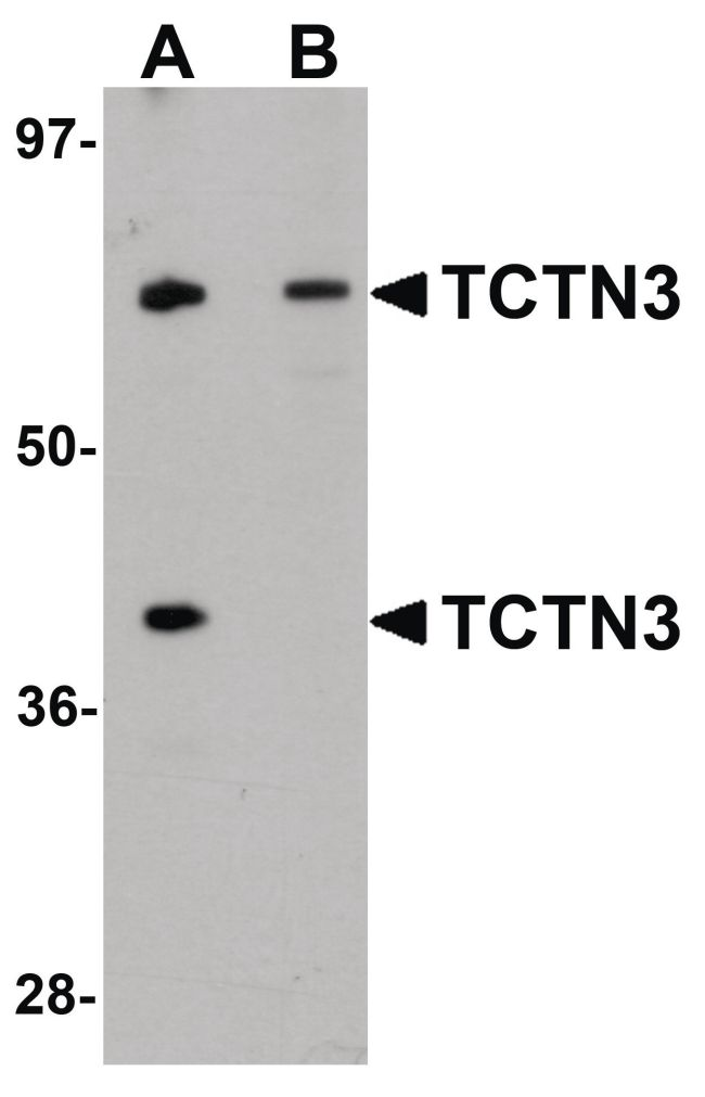 TCTN3 Antibody (PA5-20985) in Western Blot