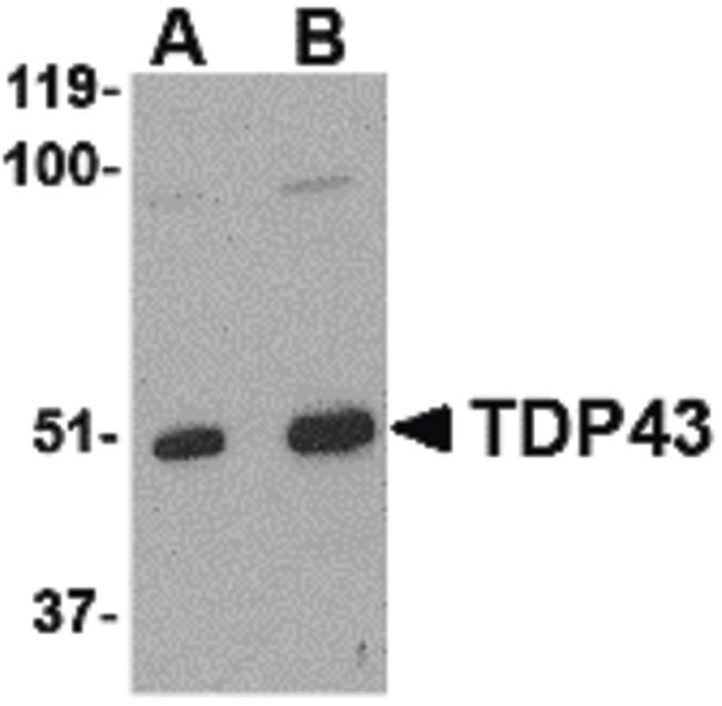 TARDBP Antibody (PA5-20409) in Western Blot