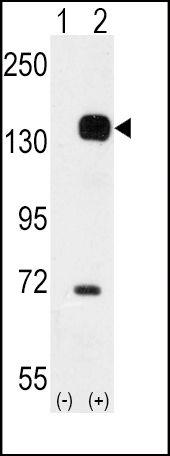 TEK Antibody (PA5-14742) in Western Blot