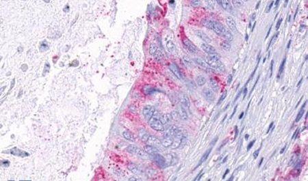 TEM5 Antibody (PA5-33619) in Immunohistochemistry (Paraffin)