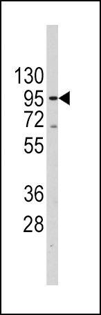 TERT Antibody (PA5-11446) in Western Blot