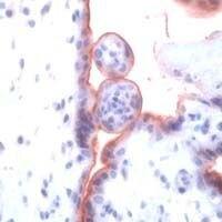 TGFBR1 Antibody (PA1-38737) in Immunohistochemistry