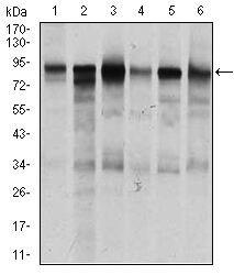 TGFBR3 Antibody (MA5-17187) in Western Blot