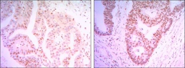 THAP11 Antibody (MA5-15674) in Immunohistochemistry