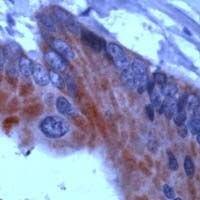 THRB Antibody (PA1-38763)
