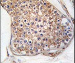 TEK Antibody (PA5-14742) in Immunohistochemistry