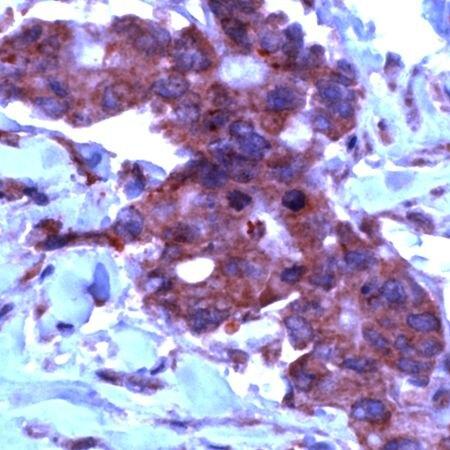 TIMP2 Antibody (PA5-32620)