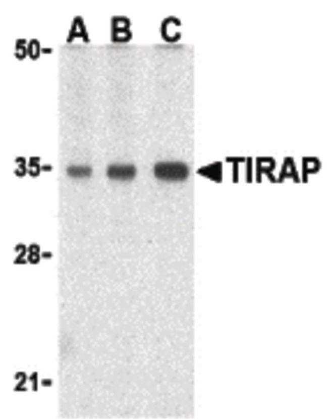 TIRAP Antibody (PA5-20028) in Western Blot