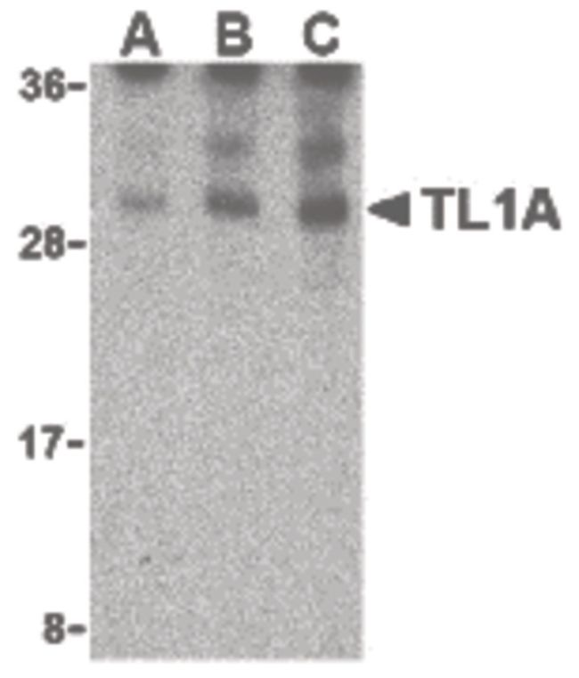 TL1A Antibody (PA5-20210)