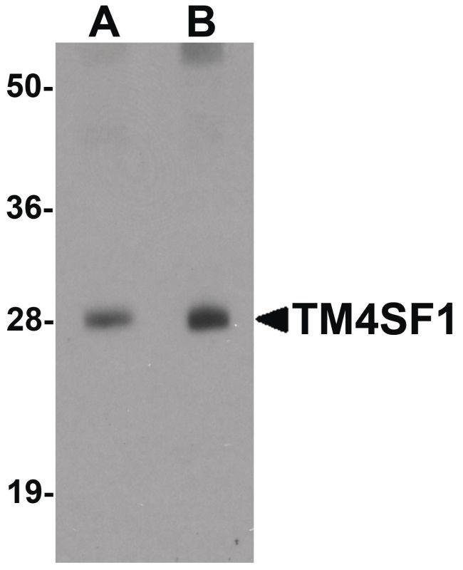 TM4SF1 Antibody (PA5-21119) in Western Blot