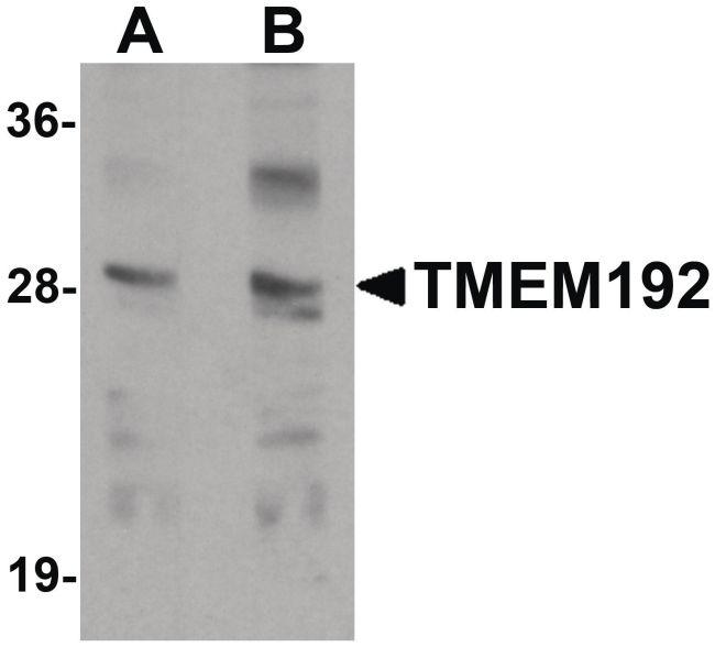 TMEM192 Antibody (PA5-21118) in Western Blot
