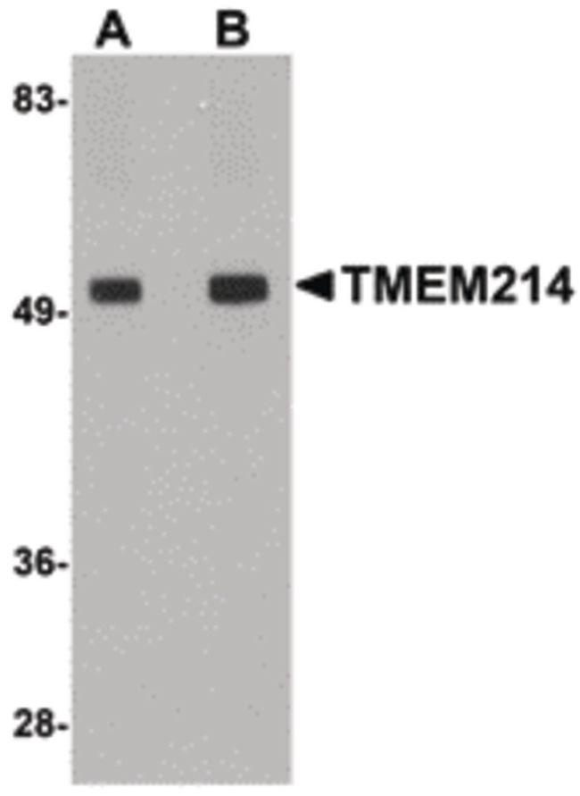 TMEM214 Antibody (PA5-20792) in Western Blot
