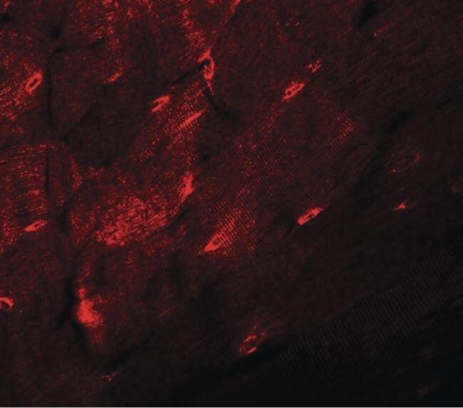 TMEM38A Antibody (PA5-20858)