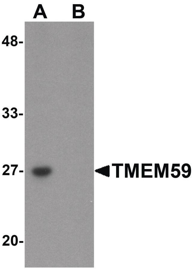 TMEM59 Antibody (PA5-21065) in Western Blot