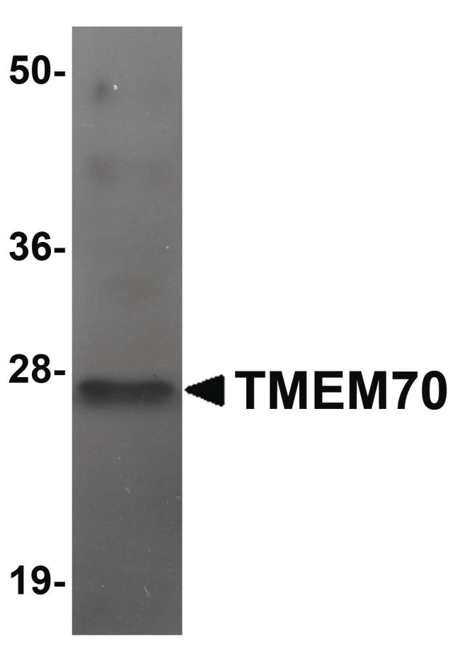 TMEM70 Antibody (PA5-20915) in Western Blot