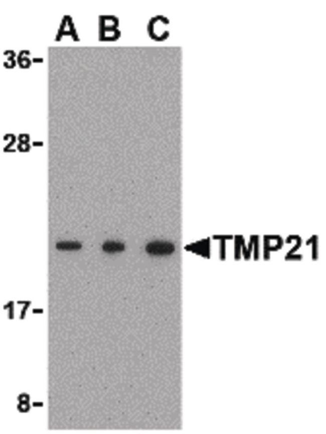 TMP21 Antibody (PA5-20315) in Western Blot