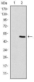 TNNI2 Antibody (MA5-15911) in Western Blot