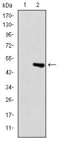TNNI2 Antibody (MA5-15913) in Western Blot