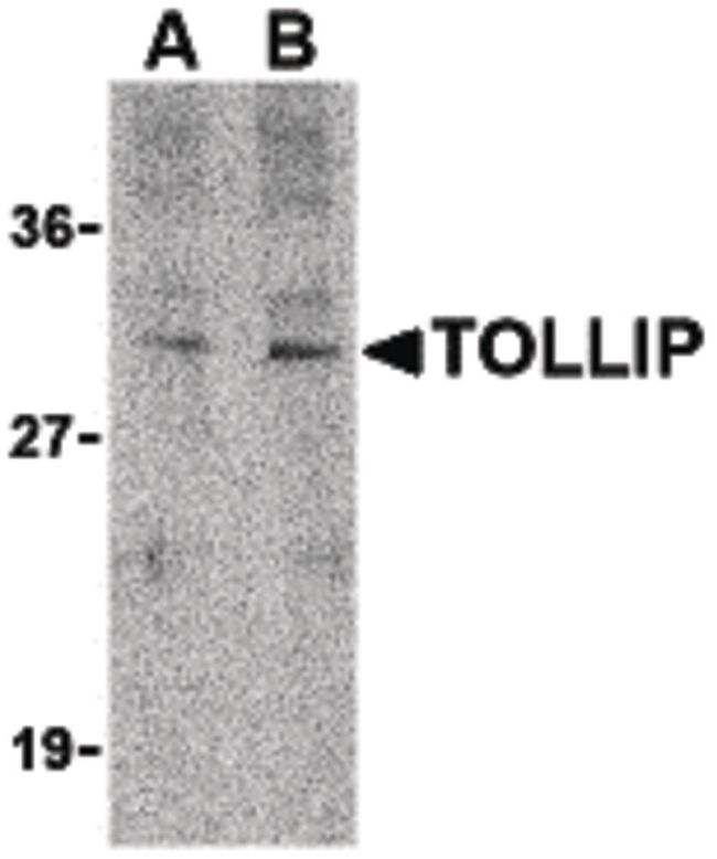TOLLIP Antibody (PA5-20204) in Western Blot