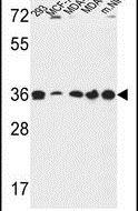 TOR1B Antibody (PA5-24705)