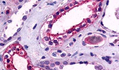 TPRA1 Antibody (PA5-34274)