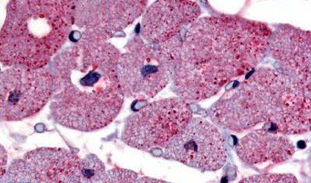 TPRA1 Antibody (PA5-34276) in Immunohistochemistry (Paraffin)