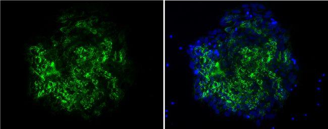 TRA-1-60 Antibody (MA1-023) in Immunofluorescence