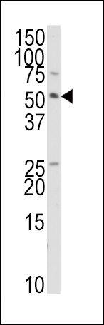 TRAIP Antibody (PA5-12427) in Western Blot