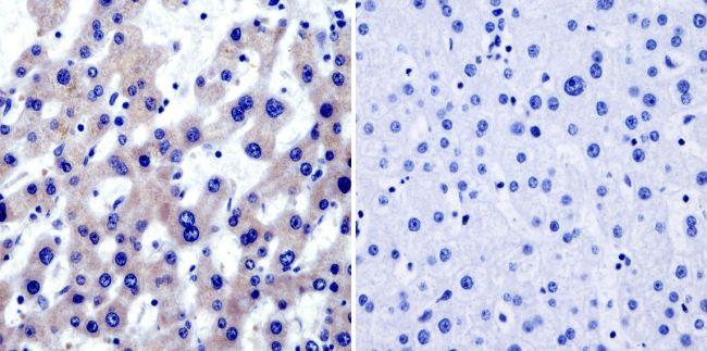 TRAP1 Antibody (MA1-010) in Immunohistochemistry