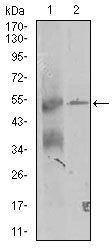 TRIP6 Antibody (MA5-17191) in Western Blot