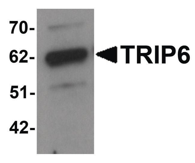 TRIP6 Antibody (PA5-21040) in Western Blot